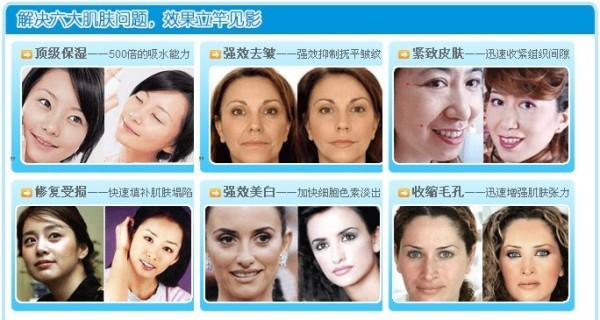 使其饱满恢复弹性和除皱、紧致的效果。同时还可以改善微循环、消灭有害菌,分解毒素,对青春痘等问题皮肤,有着明显的效果,淡化沉着色素,补充皮肤所需营养,使矿物质成份深入肌肤,提高保湿能力,可预防干燥和表情纹的产生,让皮肤在湿润状态下缩进毛孔,并可彻底阻断紫外线对皮肤的伤害。防止老化,对于使用铅、汞、激素类功能性产品受损肌肤进行分解有机毒性,活化皮下细胞,改善周身皮肤质量、美体达到综合调整的作用。