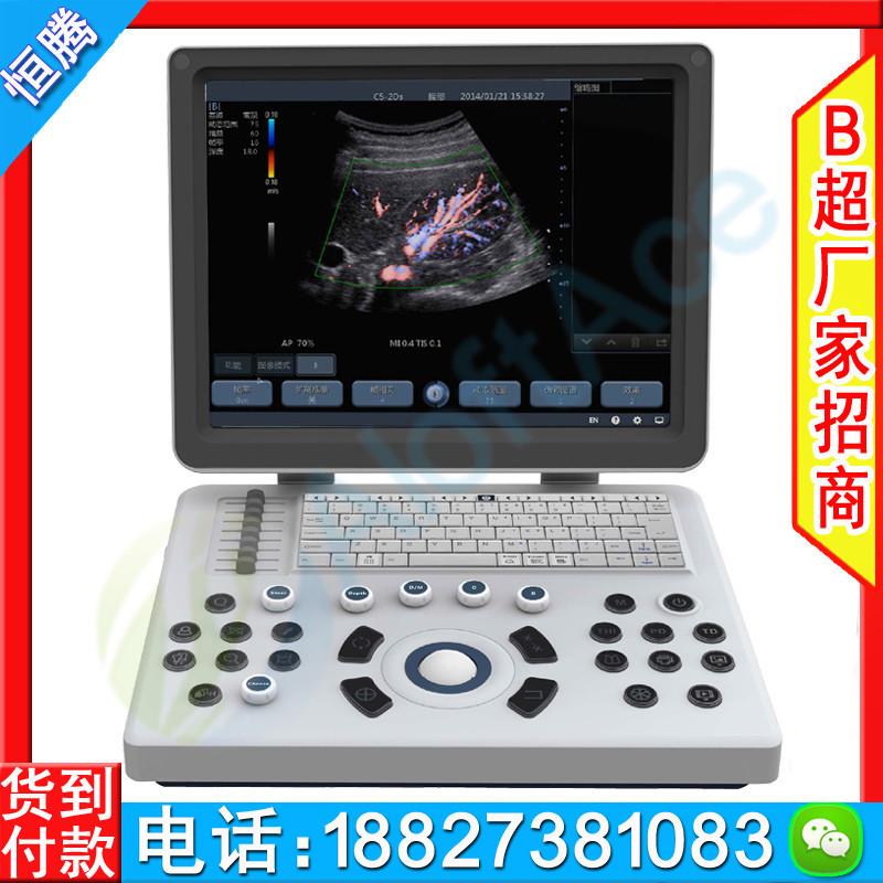 彩超机 A6C型笔记本彩超仪 AloftAce牌进口彩超 彩超机