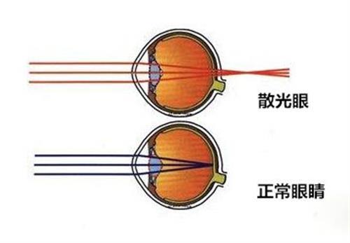 眼睛视力恢复|杭州视力恢复|肇庆健瞳公司