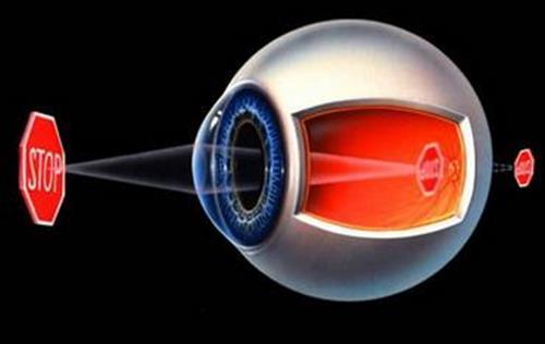 儿童视力恢复、秦皇岛视力恢复、肇庆健瞳公司(在线咨询)