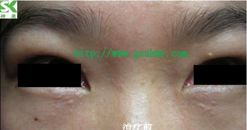 東莞汗管瘤、眼睛下面長了汗管瘤怎么辦?、神康